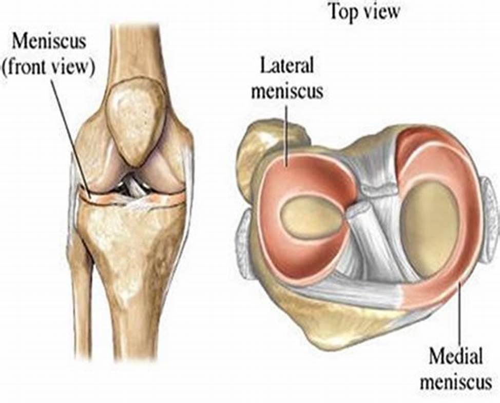 干细胞移植治疗半月板损伤研究进展