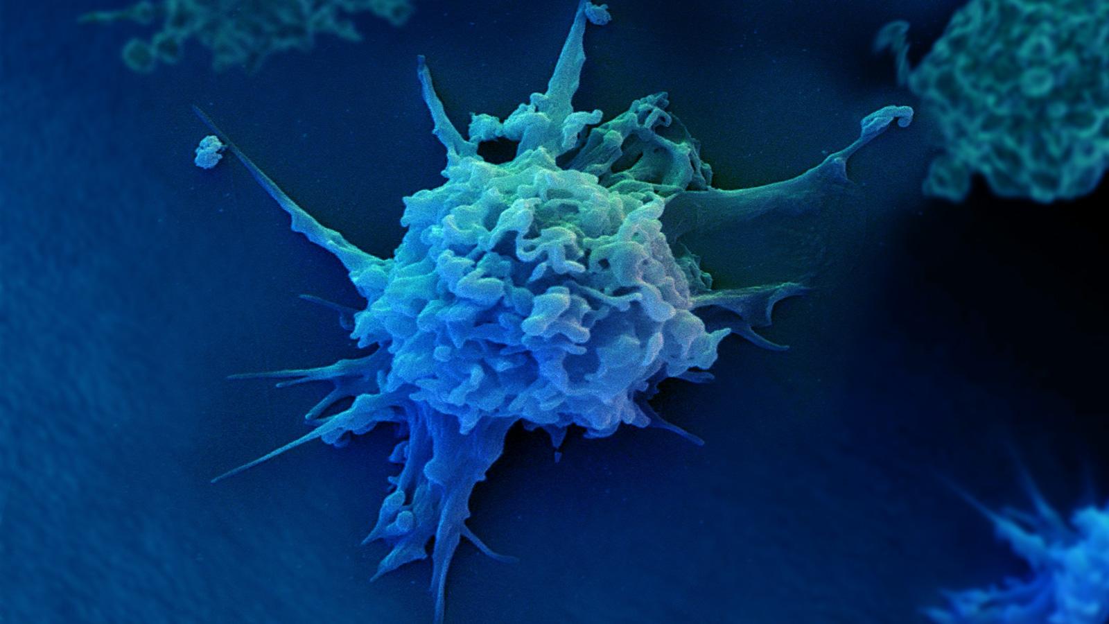 NK细胞免疫疗法