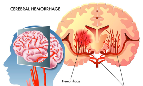 大家都关心的干细胞治疗脑出血的进展问题,终于有答案了