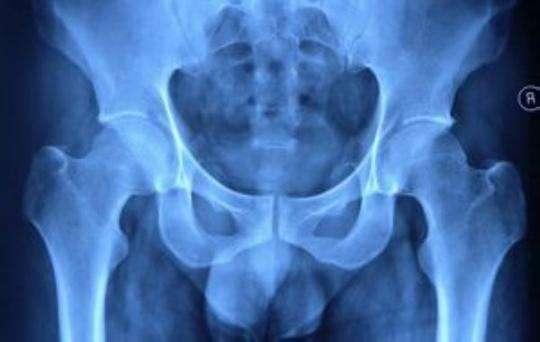 干细胞修复股骨头坏死的新技术干细胞修复股骨头坏死的新技术干细胞修复股骨头坏死的新