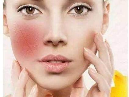 干细胞治疗激素脸效果如何?