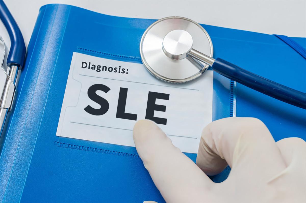 干细胞治疗系统性红斑狼疮的新视角