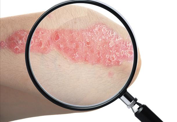干细胞移植及其条件培养基可有效治疗银屑病