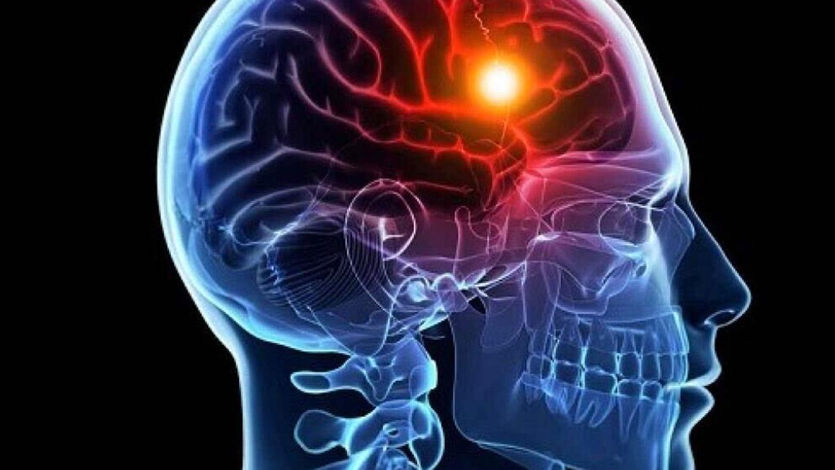新方案:干细胞移植修复脑卒中具有2大优势