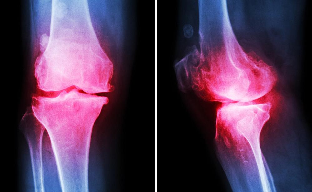 干细胞移植对骨关节炎的作用机制与临床研究